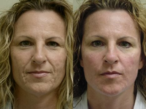 Laser Treatments in San Diego Before & After - Case Study 1