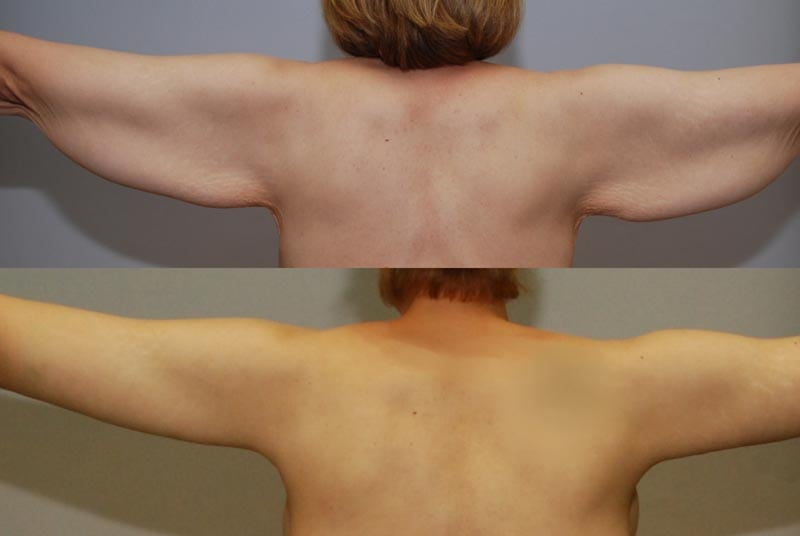 Arm Lift & Thigh Lift in San Diego Before & After - Case Study 1