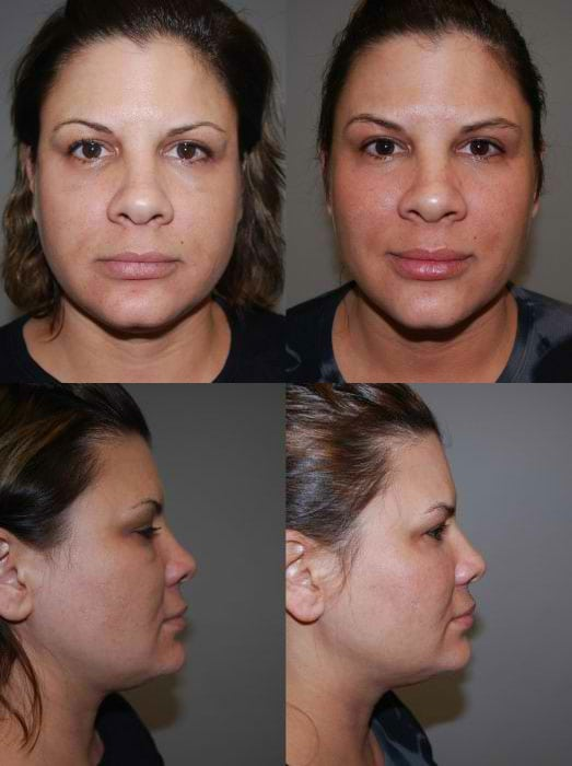Laser Treatments in San Diego Before & After - Case Study 10
