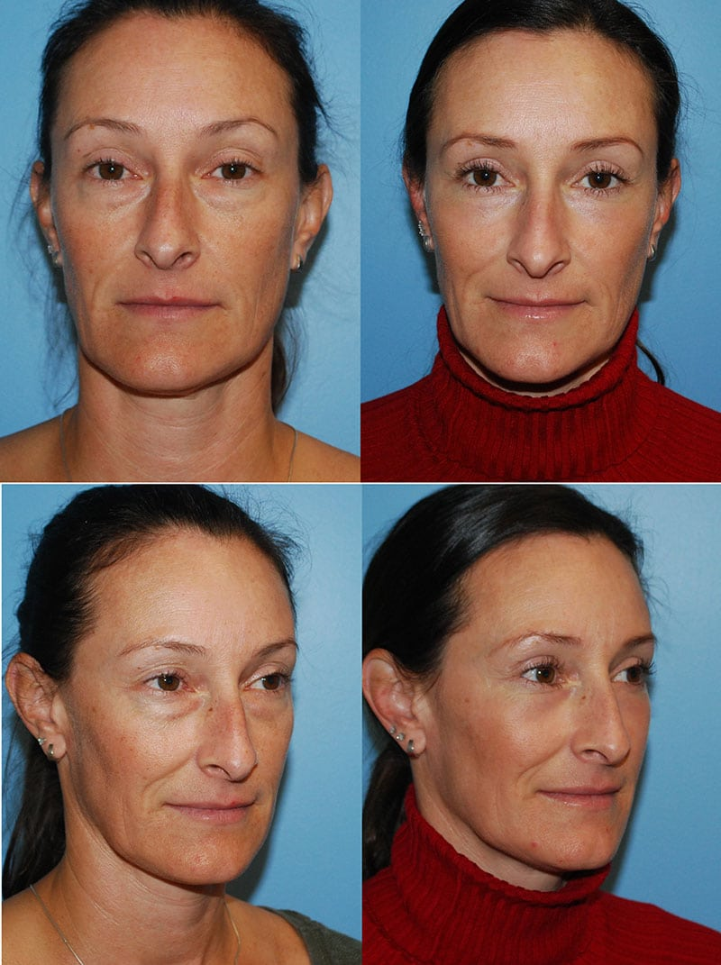 Laser Treatments in San Diego Before & After - Case Study 11