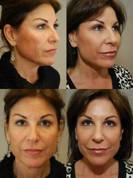 Laser Treatments in San Diego Before & After - Case Study 12