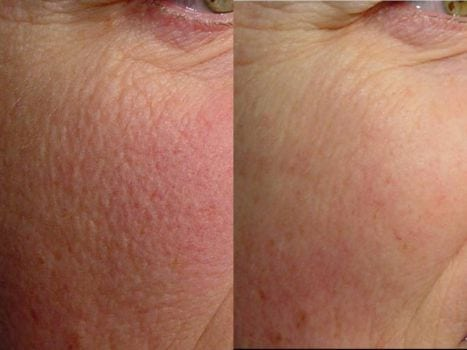 Laser Treatments in San Diego Before & After - Case Study 13