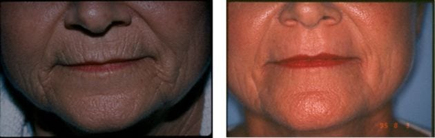Laser Treatments in San Diego Before & After - Case Study 14