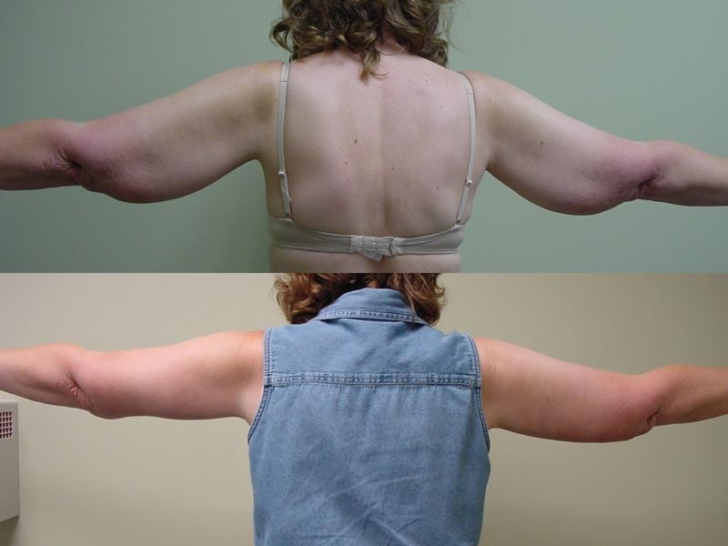 Arm Lift & Thigh Lift in San Diego Before & After - Case Study 15