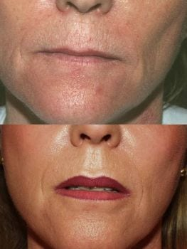 Laser Treatments in San Diego Before & After - Case Study 15