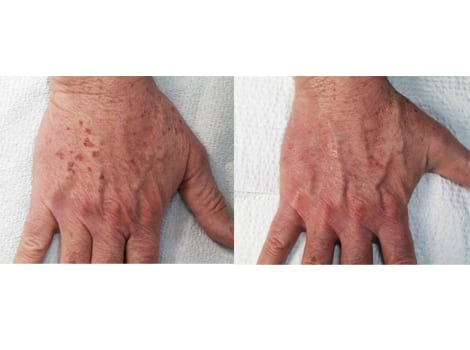 Laser Treatments in San Diego Before & After - Case Study 16
