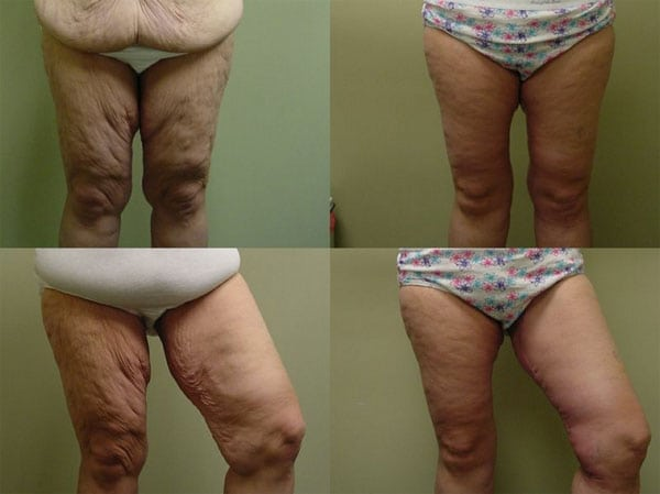 Arm Lift & Thigh Lift in San Diego Before & After - Case Study 17
