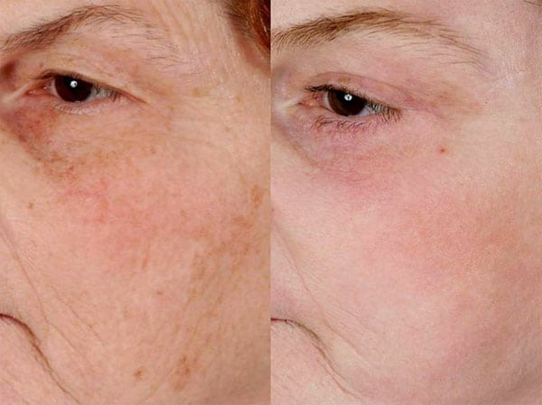 Laser Treatments in San Diego Before & After - Case Study 17