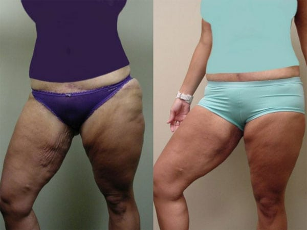 Arm Lift & Thigh Lift in San Diego Before & After - Case Study 19