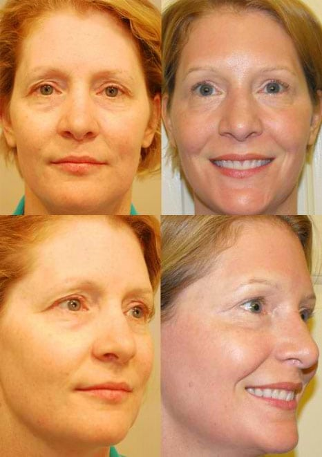 Laser Treatments in San Diego Before & After - Case Study 2
