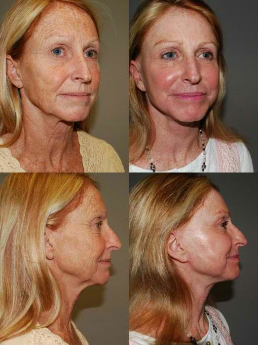 Laser Treatments in San Diego Before & After - Case Study 3