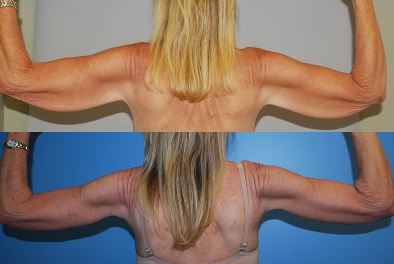 Arm Lift & Thigh Lift in San Diego Before & After - Case Study 3