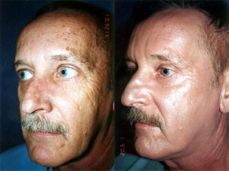 Laser Treatments in San Diego Before & After - Case Study 4