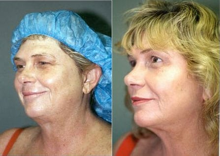 Laser Treatments in San Diego Before & After - Case Study 5