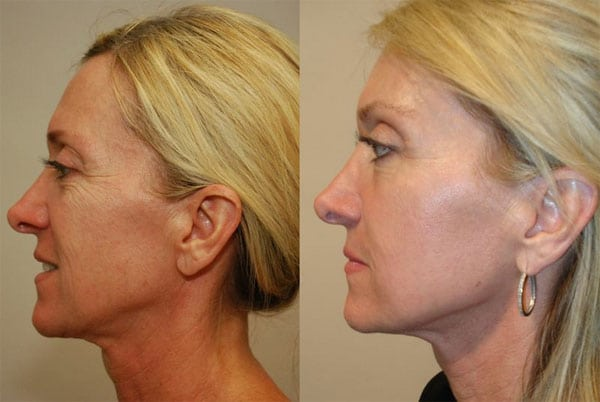 Laser Treatments in San Diego Before & After - Case Study 6