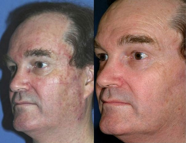 Laser Treatments in San Diego Before & After - Case Study 7
