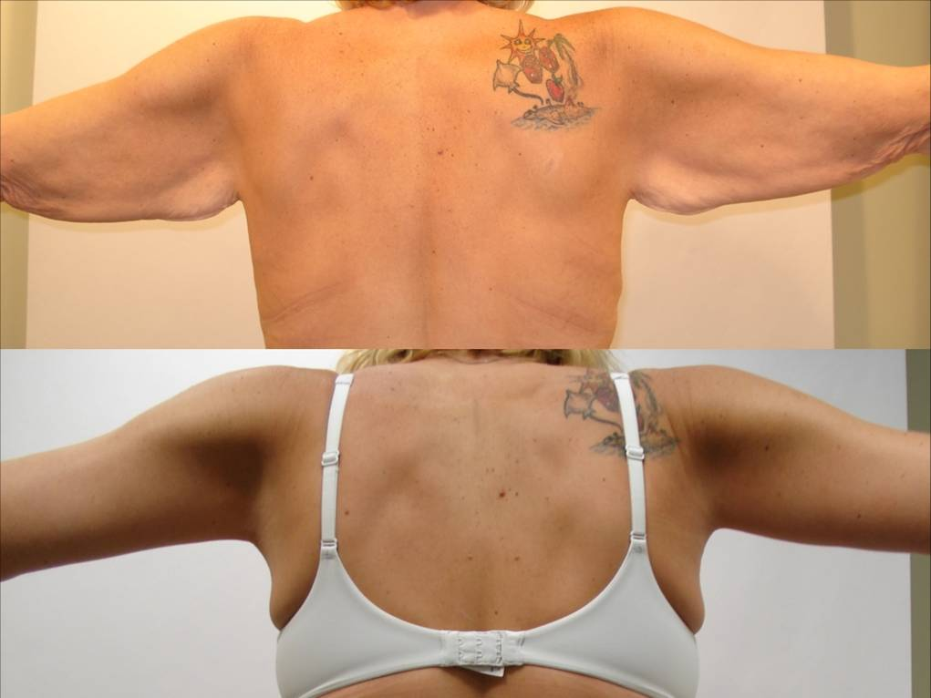 Arm Lift & Thigh Lift in San Diego Before & After - Case Study 8