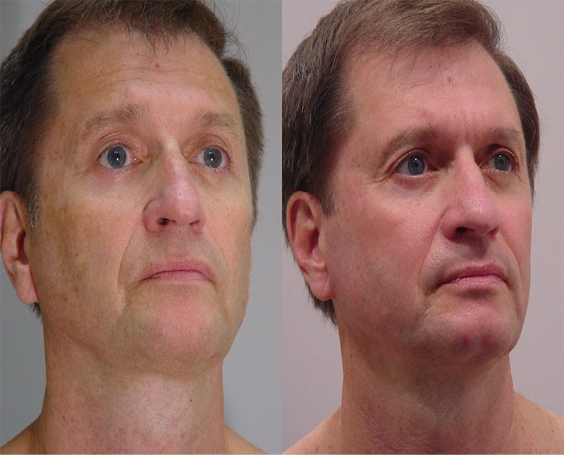Laser Treatments in San Diego Before & After - Case Study 8