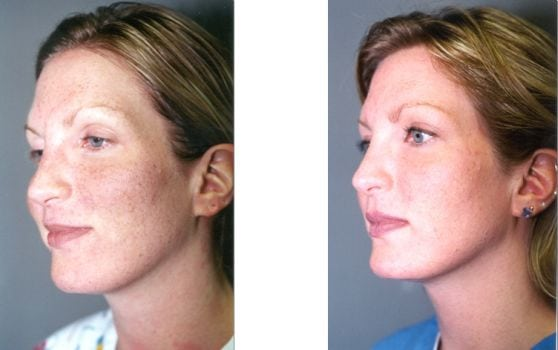 Laser Treatments in San Diego Before & After - Case Study 9