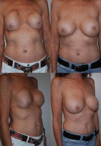 Breast Revision Coastal Plastic Surgeons PM