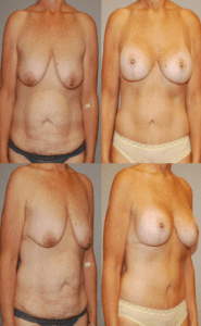 Coastal Plastic Surgeons Mommy makeover before and after photos