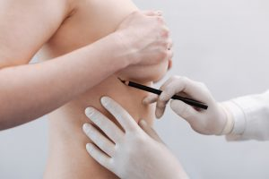 Why Choose an Experienced Plastic Surgeon for Your Breast Augmentation