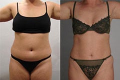 Tummy Tuck Before and After Patient