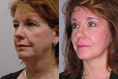 Facelift Before and After Patient
