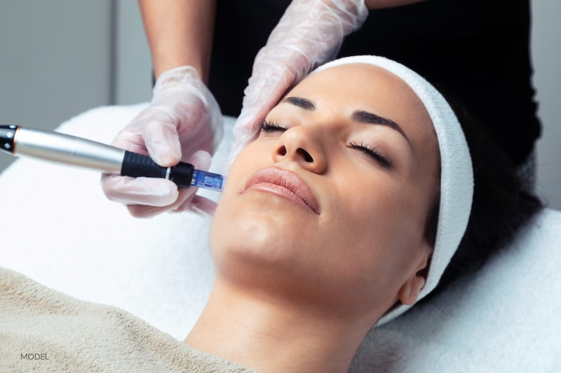 cosmetologist using microneedling on patient