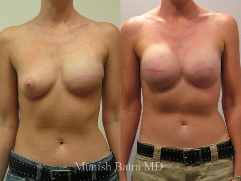 Girl developing breast