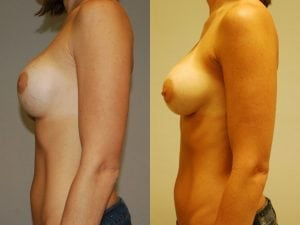 Complex Breast Patient 01 side.