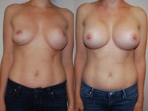 Complex Breast Patient 10 front.