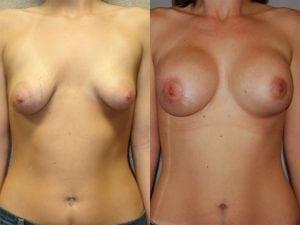 Complex Breast Patient 12 front.