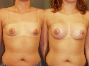 Complex Breast Patient 16 front.