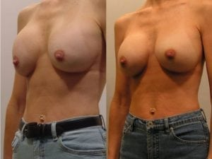 Complex Breast Patient 17 angled left.