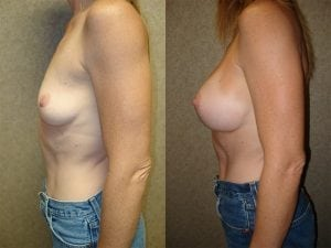 Complex Breast Patient 18 side.