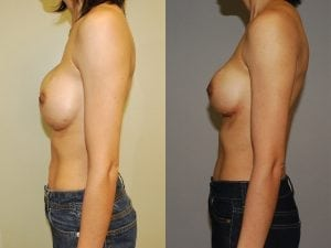 Complex Breast Patient 02 side.