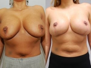 Complex Breast Patient 21 front.