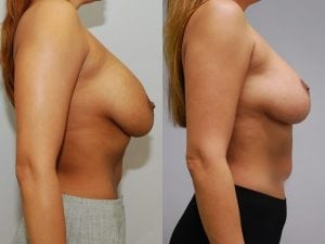 Complex Breast Patient 21 side.
