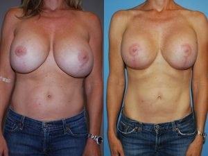 Complex Breast Patient 22 front.