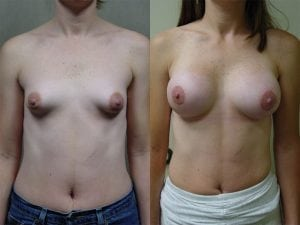 Complex Breast Patient 23 front.