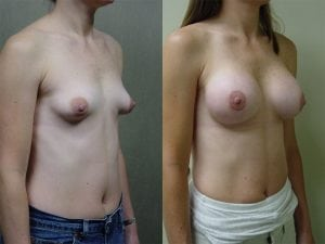 Complex Breast Patient 23 angled right.