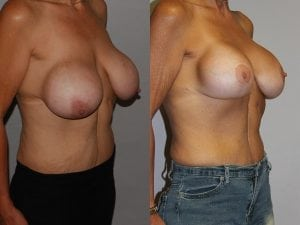 Complex Breast Patient 24 side.