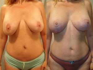 Complex Breast Patient 27 front.