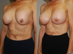 Complex Breast Patient 28 angled left.