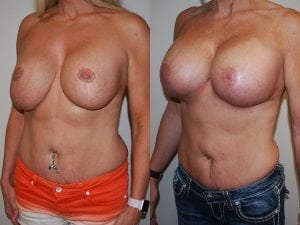 Complex Breast Patient 29 angled left.