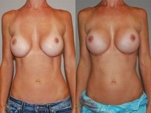 Complex Breast Patient 03 front.