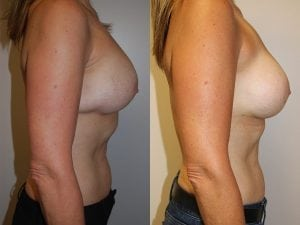 Complex Breast Patient 30 side.