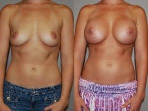Complex Breast Patient 31 front.
