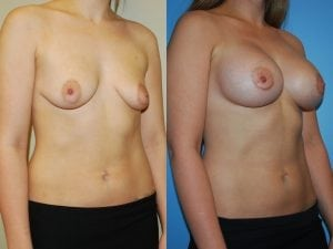 Complex Breast Patient 32 angled right.